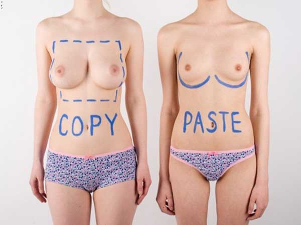Copy/paste breast augmentation